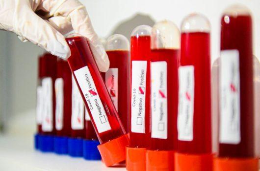 Piauí ultrapassa 110 mil casos do coronavírus; mortes caem 12,8% em uma semana