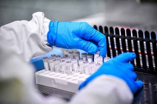 PI registra 4 óbitos e mais 626 casos de Covid-19 nas últimas 24 horas